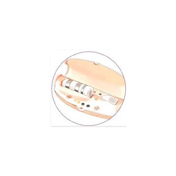 Electrostimulateur périnéal Keat
